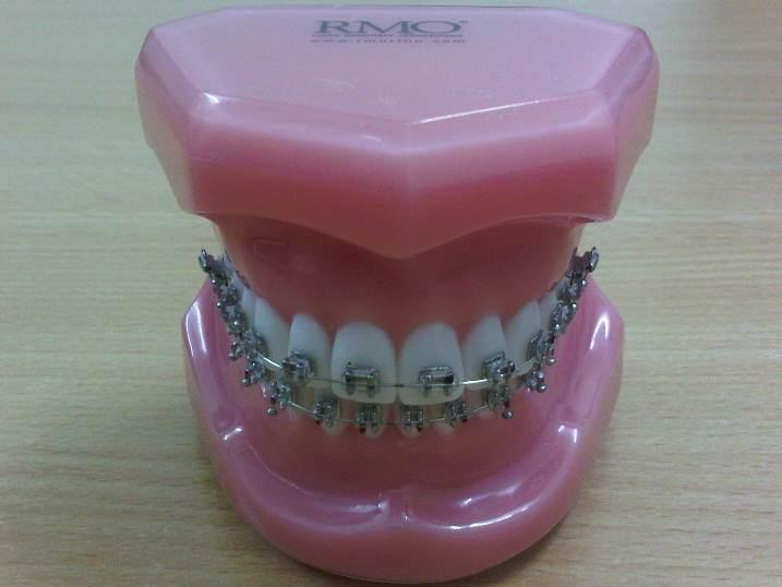 Mẫu hàm Typodont